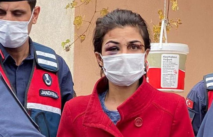 Rrezikon 25 vite burgim… Historia e trishtë pas fytyrës së kësaj gruaje