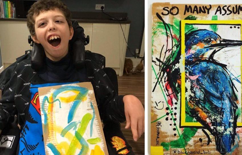 Edhe pse i sëmurë, ky 12 vjeçar prek zemrat e artistëve për të bërë bamirësi
