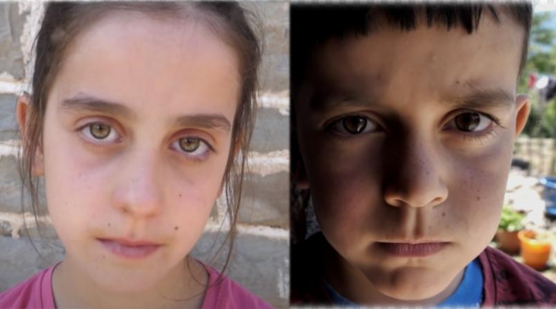 Lotët e 9 vjeçares: Unë dhe vëllai jemi binjakë… unë jam e shëndetshme, por vëllai im jo